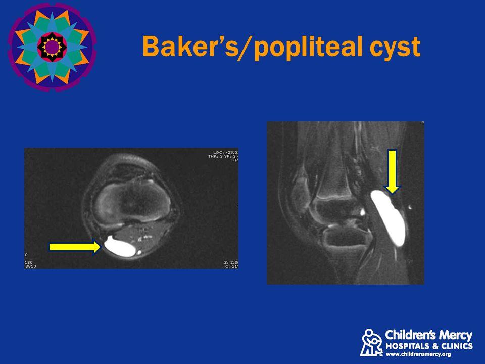 Baker's/popliteal cyst
