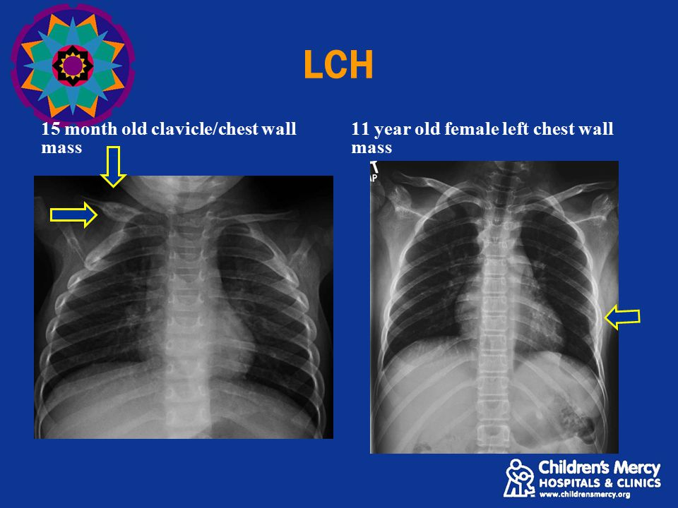 LCH 15 month old clavicle/chest wall mass 11 year old female left chest wall mass