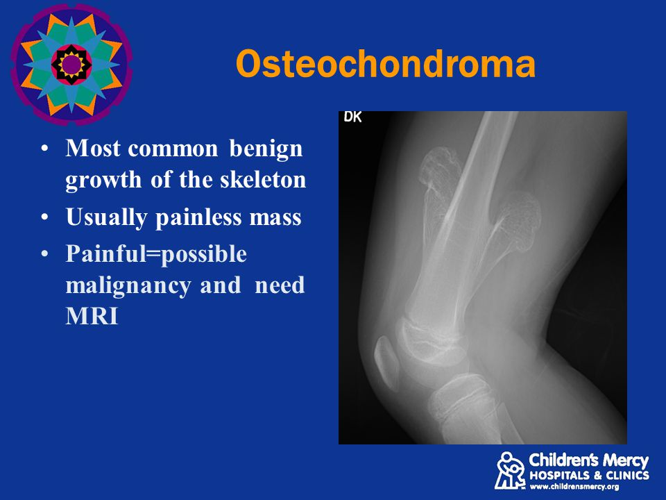 Osteochondroma Most common benign growth of the skeleton Usually painless mass Painful=possible malignancy and need MRI