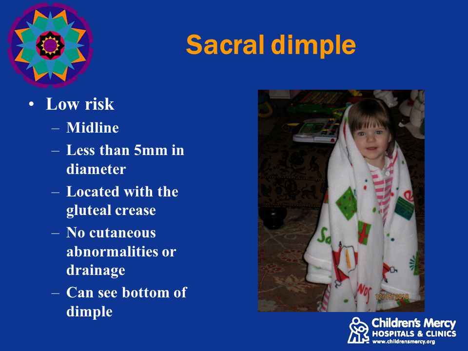 Sacral dimple Low risk –Midline –Less than 5mm in diameter –Located with the gluteal crease –No cutaneous abnormalities or drainage –Can see bottom of dimple