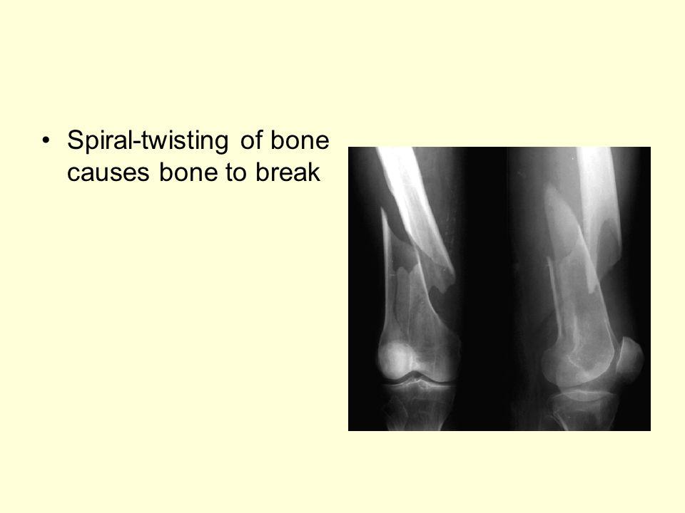 Spiral-twisting of bone causes bone to break