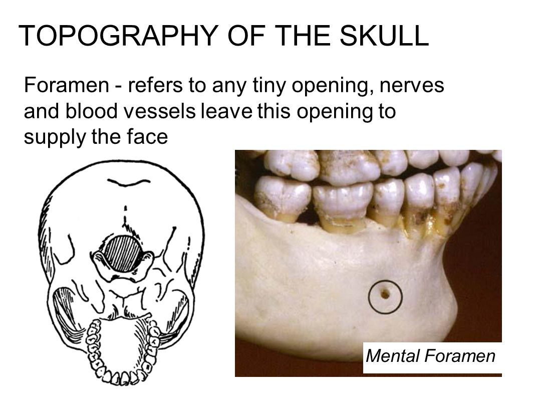TOPOGRAPHY OF THE SKULL Foramen - refers to any tiny opening, nerves and blood vessels leave this opening to supply the face Mental Foramen