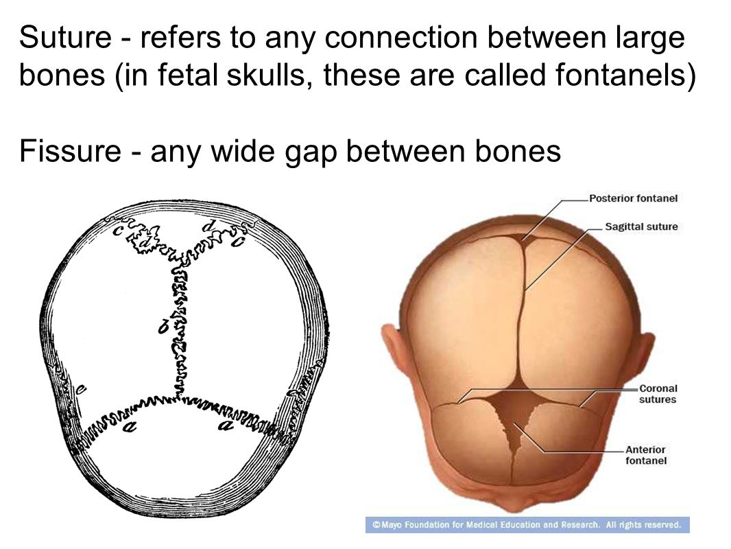 Suture - refers to any connection between large bones (in fetal skulls, these are called fontanels) Fissure - any wide gap between bones