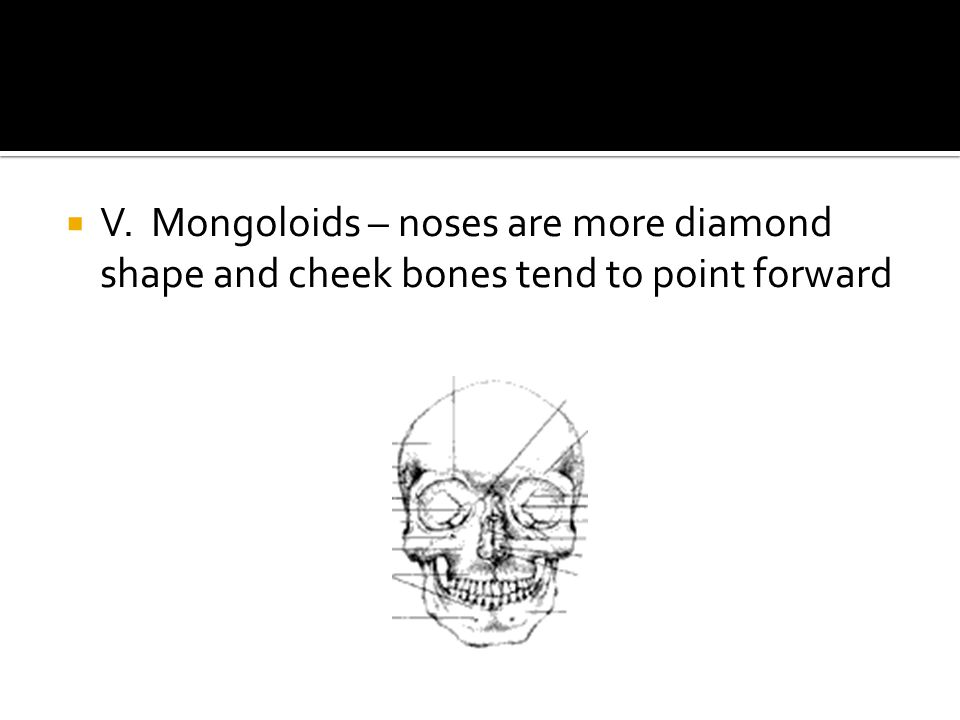  V. Mongoloids – noses are more diamond shape and cheek bones tend to point forward