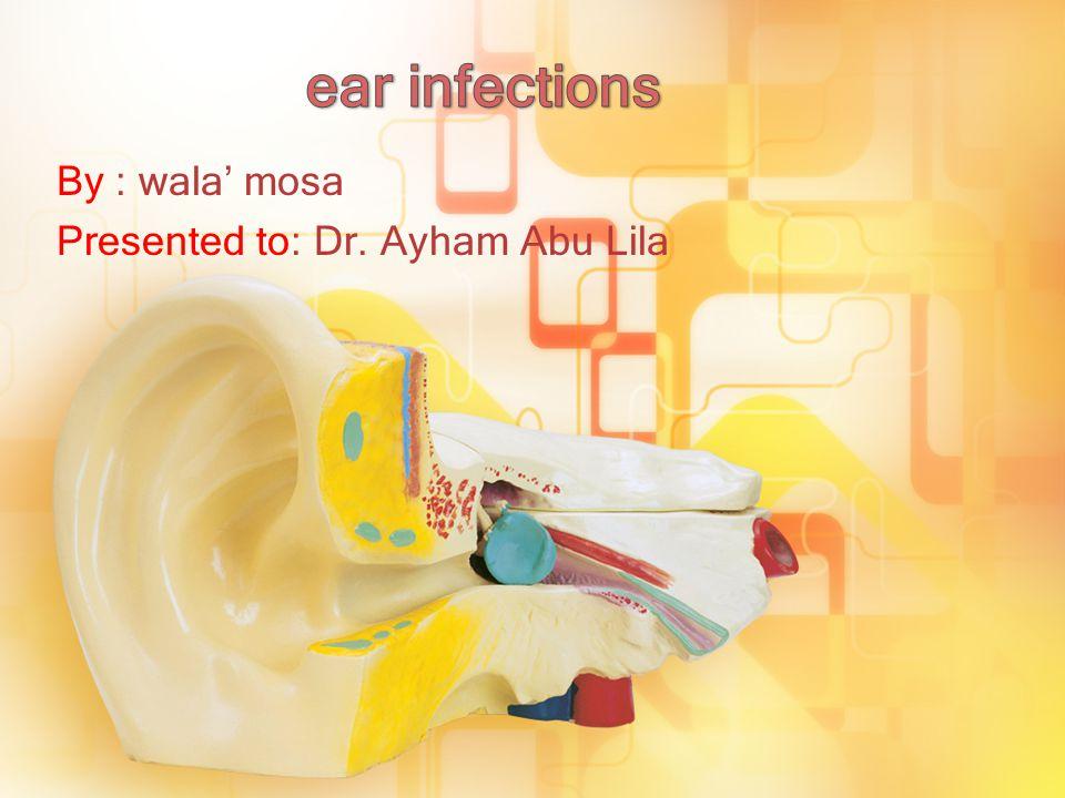 By : wala' mosa Presented to: Dr. Ayham Abu Lila