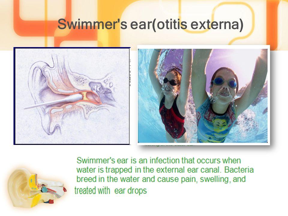(otitis externa)Swimmer s ear