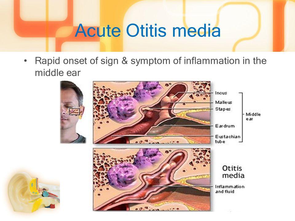 Clinical manifestation 90% of case have URI symptoms before develop AOMSymptoms Otalgia (98.2%) Fever (52.8%) Hearing loss, Pressure in ear (46%) Rhinorrhea (58.3%) Vomit & diarrhea