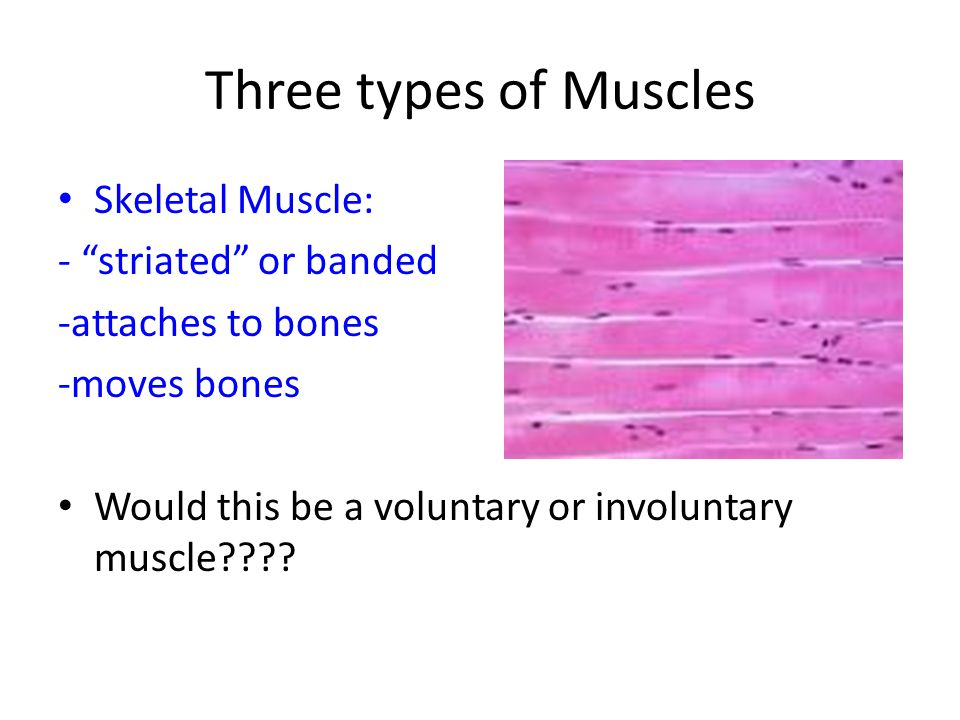 Three types of Muscles Skeletal Muscle: - striated or banded -attaches to bones -moves bones Would this be a voluntary or involuntary muscle