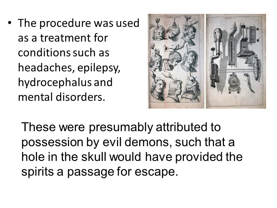 The procedure was used as a treatment for conditions such as headaches, epilepsy, hydrocephalus and mental disorders.