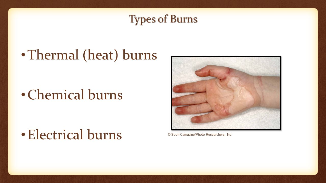 Types of Burns Thermal (heat) burns Chemical burns Electrical burns © Scott Camazine/Photo Researchers, Inc.