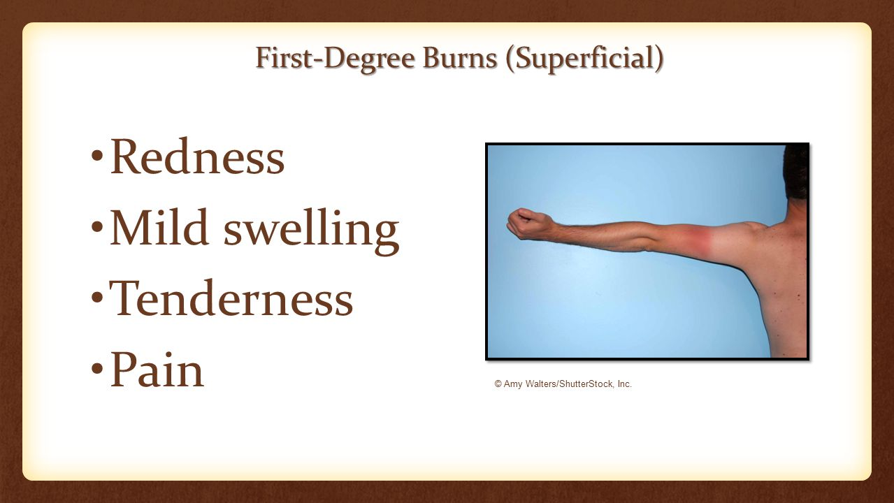 First-Degree Burns (Superficial) Redness Mild swelling Tenderness Pain © Amy Walters/ShutterStock, Inc.