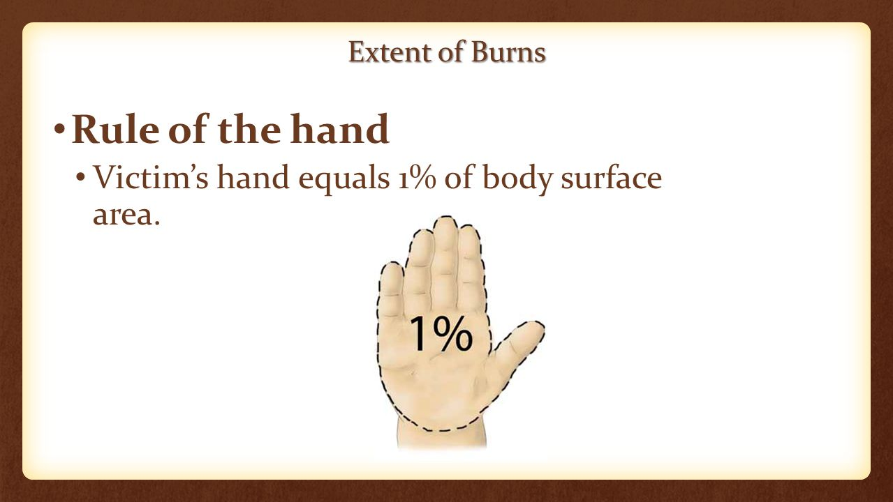 Extent of Burns Rule of the hand Victim's hand equals 1% of body surface area.