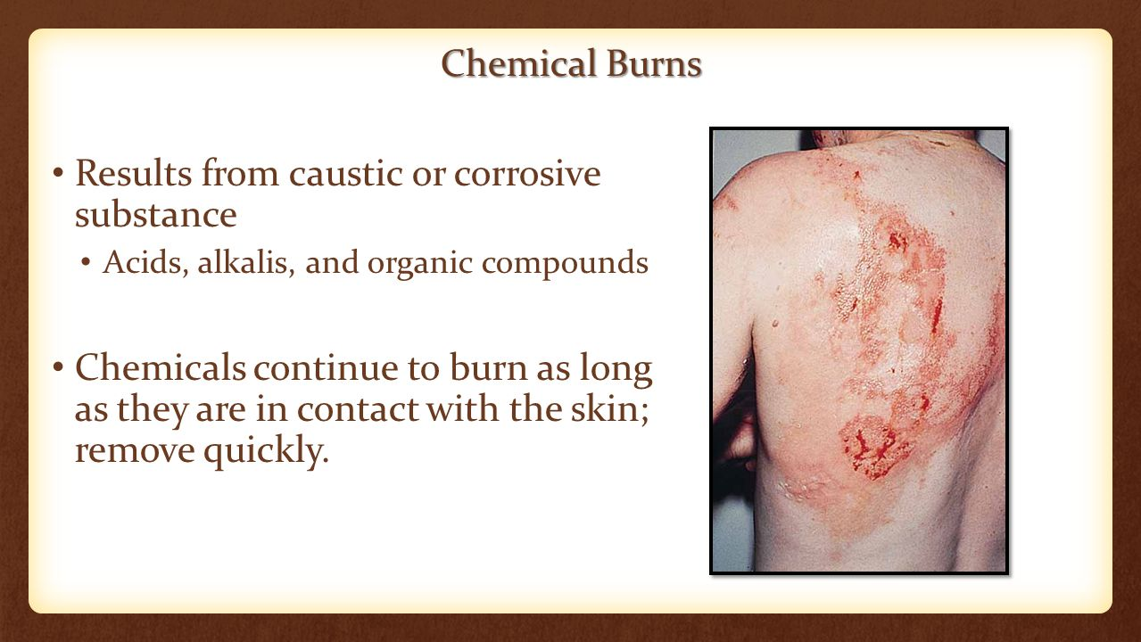 Chemical Burns Results from caustic or corrosive substance Acids, alkalis, and organic compounds Chemicals continue to burn as long as they are in con