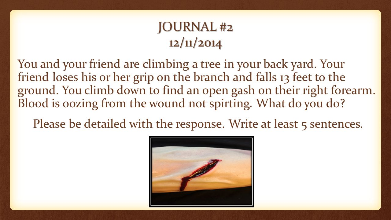 JOURNAL #2 12/11/2014 You and your friend are climbing a tree in your back yard. Your friend loses his or her grip on the branch and falls 13 feet to