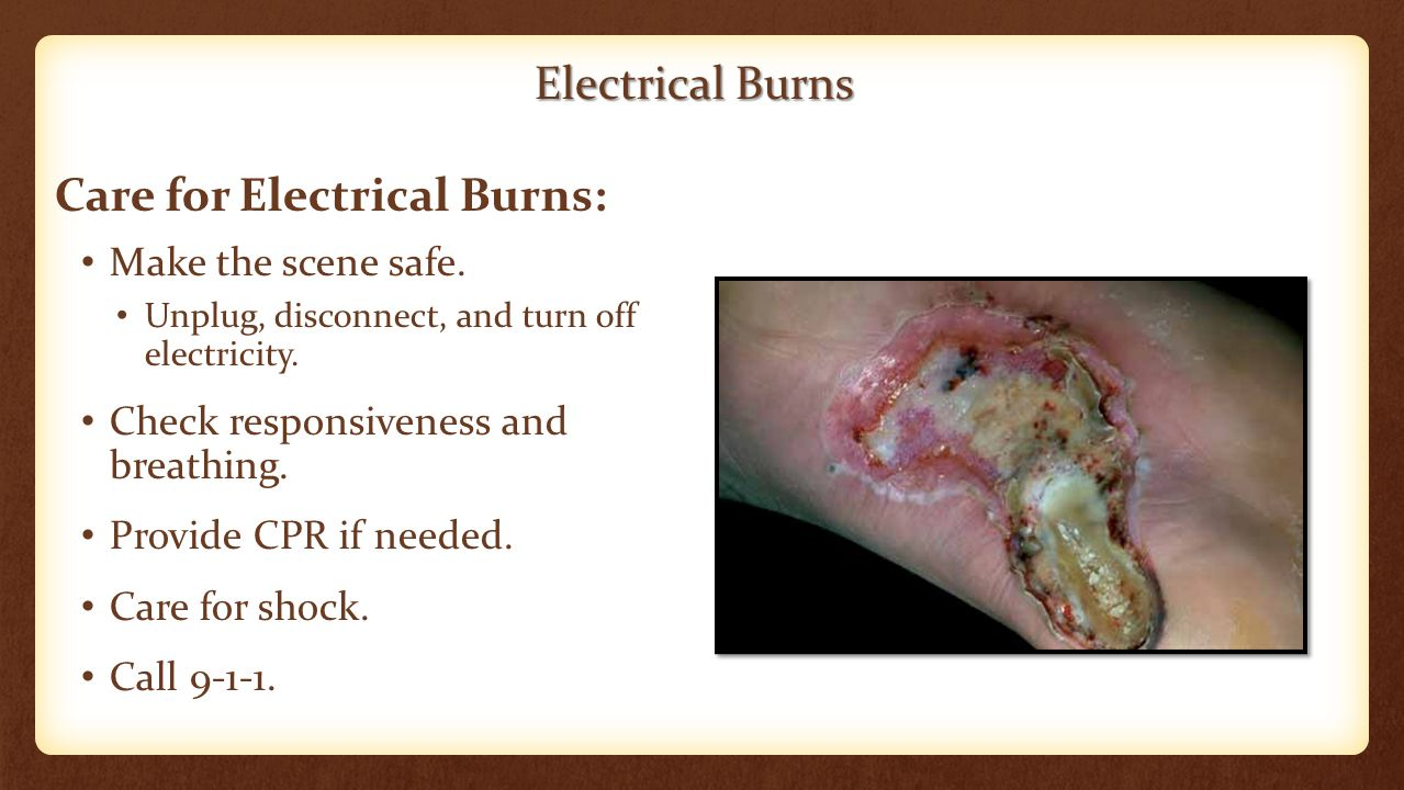 Electrical Burns Make the scene safe. Unplug, disconnect, and turn off electricity. Check responsiveness and breathing. Provide CPR if needed. Care fo
