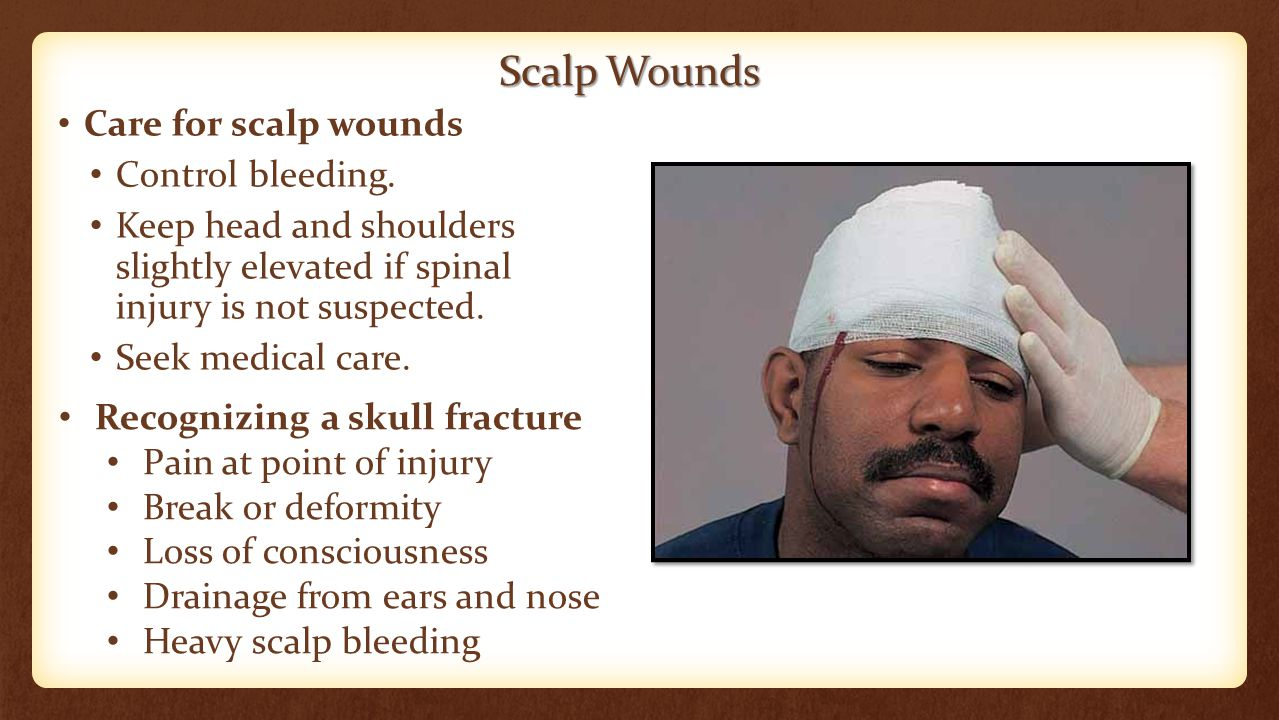 Scalp Wounds Care for scalp wounds Control bleeding. Keep head and shoulders slightly elevated if spinal injury is not suspected. Seek medical care. R