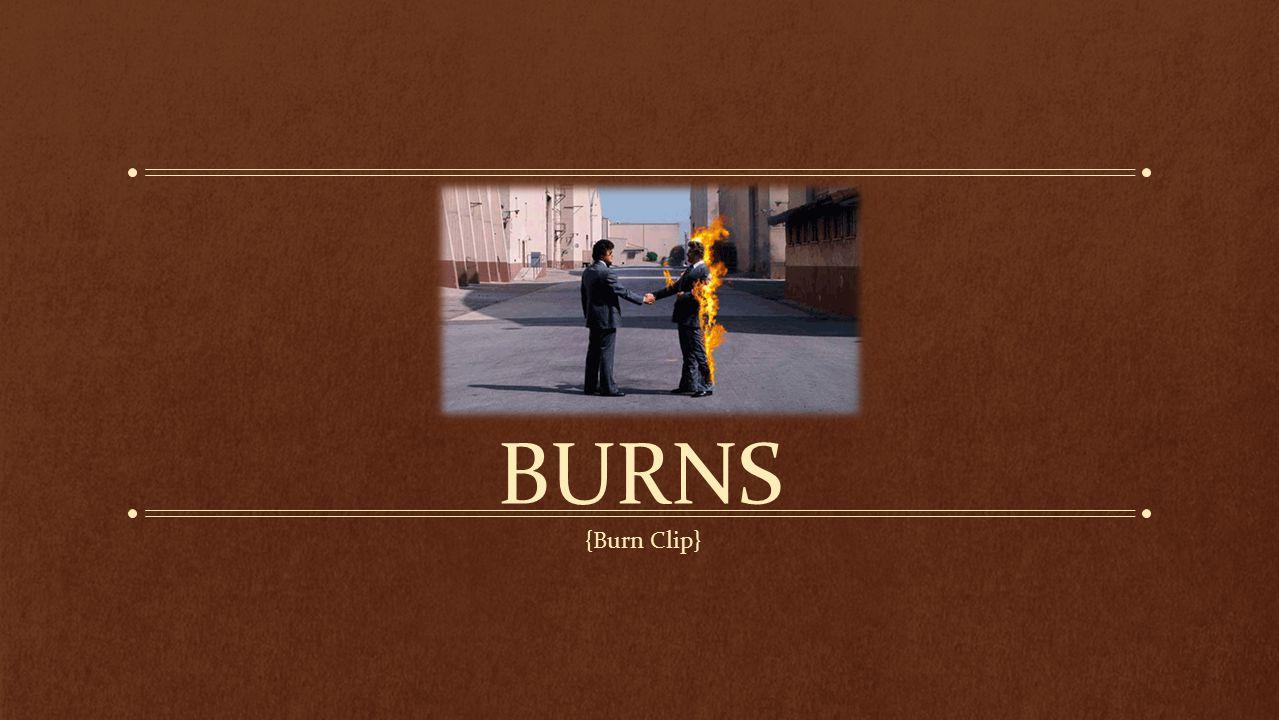 BURNS {Burn Clip}