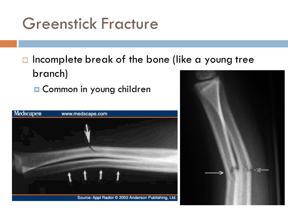 Greenstick Fracture  Incomplete break of the bone (like a young tree branch)  Common in young children