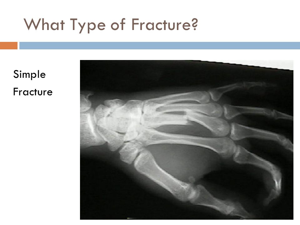 What Type of Fracture? Simple Fracture