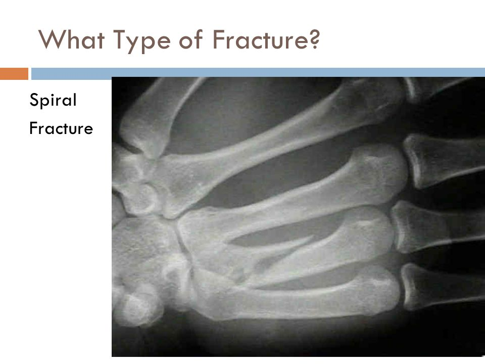 What Type of Fracture? Spiral Fracture