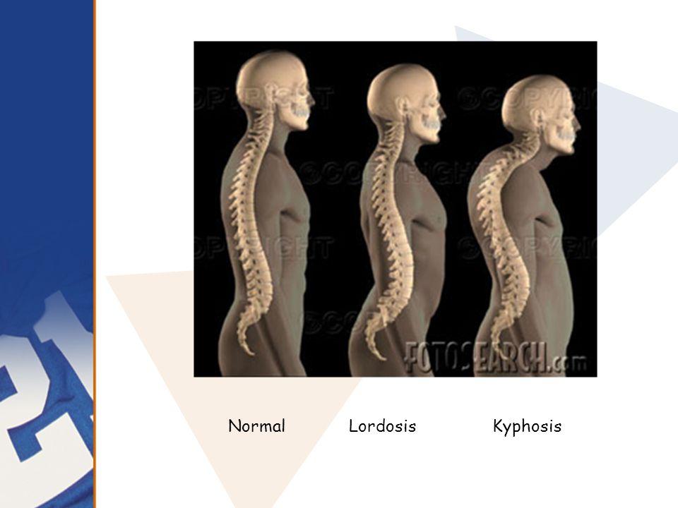 NormalLordosis Kyphosis