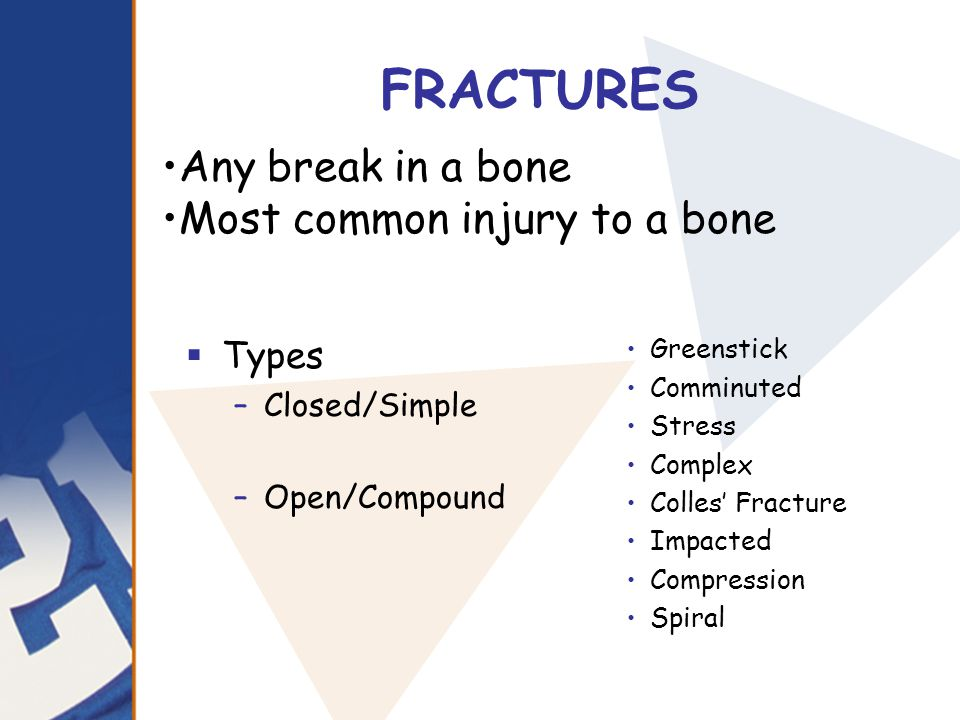 FRACTURES  Types –Closed/Simple –Open/Compound Greenstick Comminuted Stress Complex Colles' Fracture Impacted Compression Spiral Any break in a bone