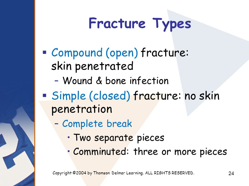 Copyright ©2004 by Thomson Delmar Learning. ALL RIGHTS RESERVED. 24 Fracture Types  Compound (open) fracture: skin penetrated –Wound & bone infection
