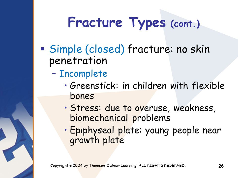 Copyright ©2004 by Thomson Delmar Learning. ALL RIGHTS RESERVED. 26 Fracture Types (cont.)  Simple (closed) fracture: no skin penetration –Incomplete