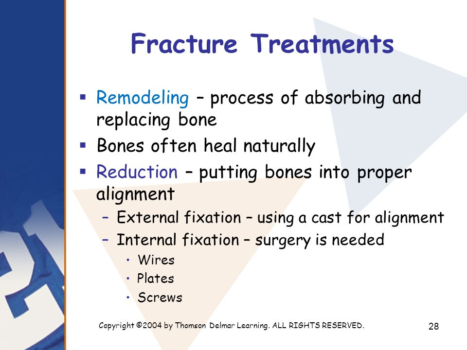 Copyright ©2004 by Thomson Delmar Learning. ALL RIGHTS RESERVED. 28 Fracture Treatments  Remodeling – process of absorbing and replacing bone  Bones