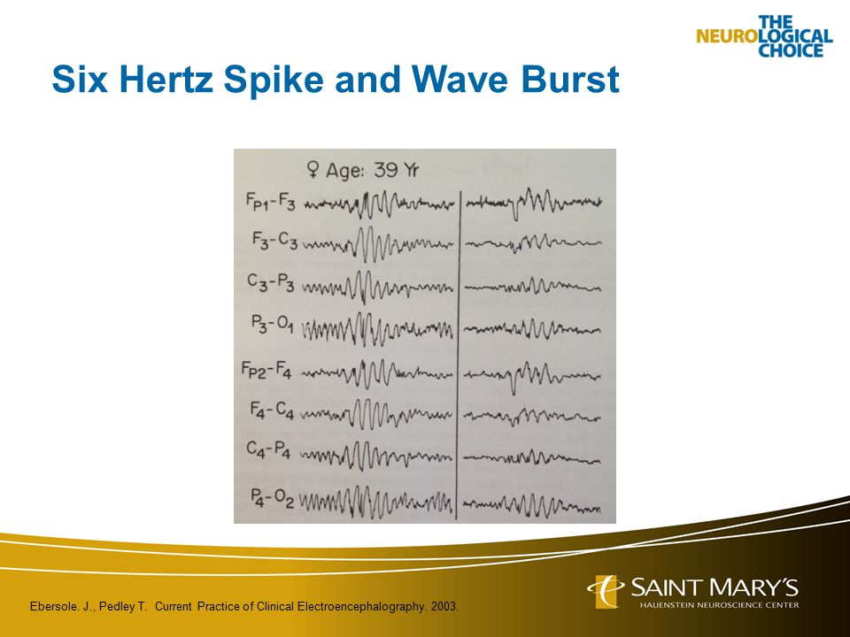 Six Hertz Spike and Wave Burst Ebersole. J., Pedley T. Current Practice of Clinical Electroencephalography. 2003.