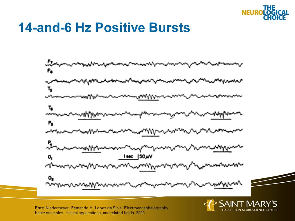 14-and-6 Hz Positive Bursts Ernst Niedermeyer, Fernando H. Lopes da Silva. Electroencephalography: basic principles, clinical applications, and relate