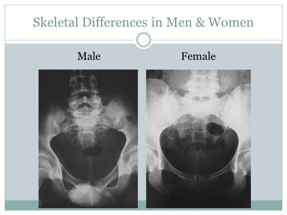 Skeletal Differences in Men & Women Male Female
