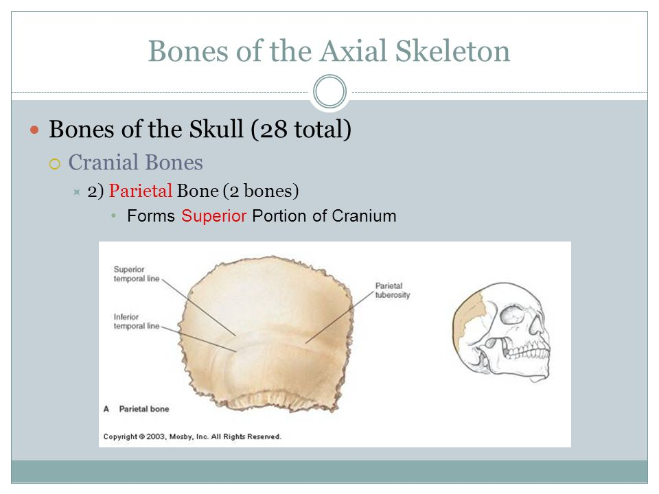 Bones of the Axial Skeleton Bones of the Skull (28 total)  Cranial Bones  2) Parietal Bone (2 bones) Forms Superior Portion of Cranium