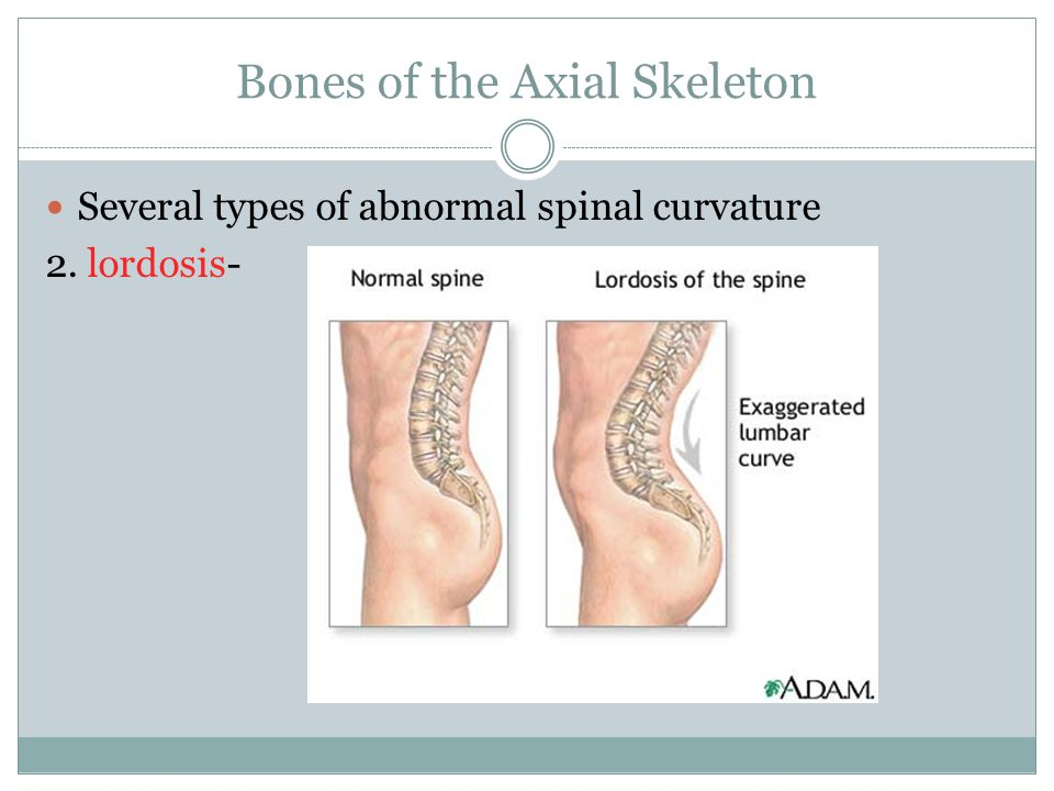 Bones of the Axial Skeleton Several types of abnormal spinal curvature 2. lordosis-