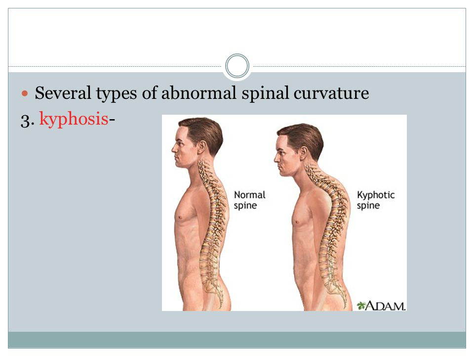 Several types of abnormal spinal curvature 3. kyphosis-