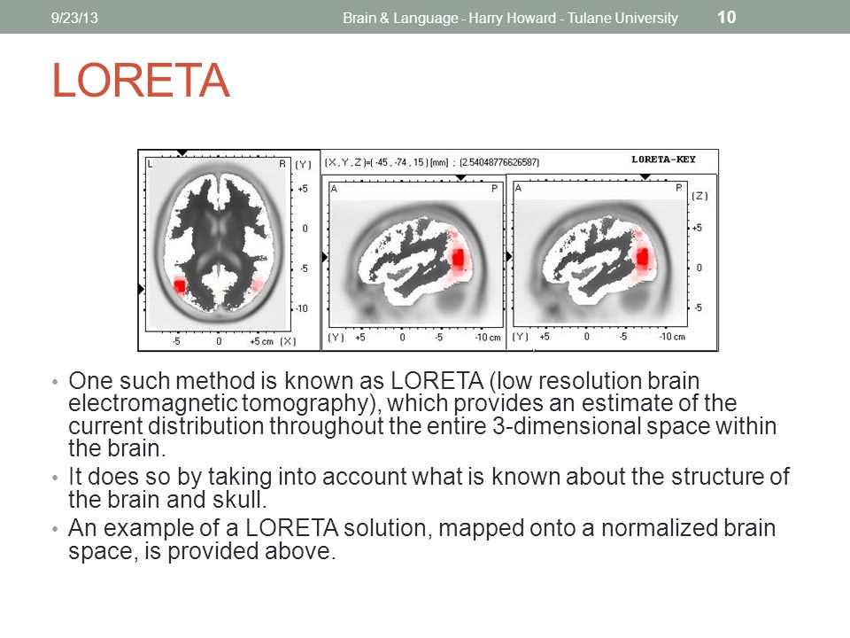 LORETA One such method is known as LORETA (low resolution brain electromagnetic tomography), which provides an estimate of the current distribution throughout the entire 3-dimensional space within the brain.
