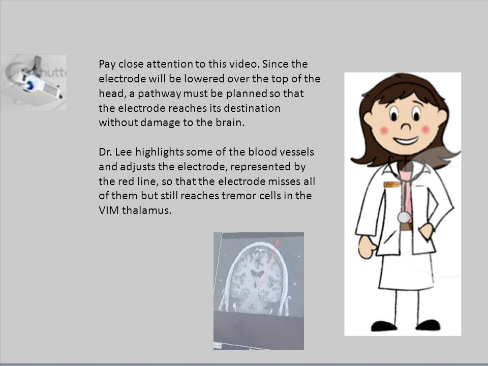 Pay close attention to this video. Since the electrode will be lowered over the top of the head, a pathway must be planned so that the electrode reach