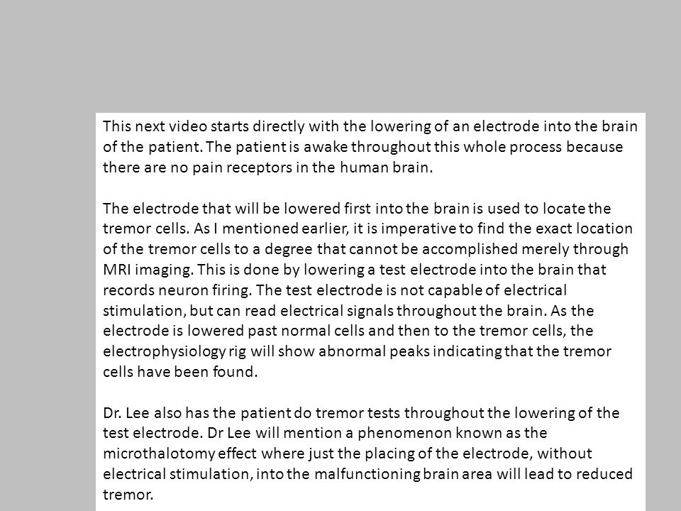 This next video starts directly with the lowering of an electrode into the brain of the patient. The patient is awake throughout this whole process be