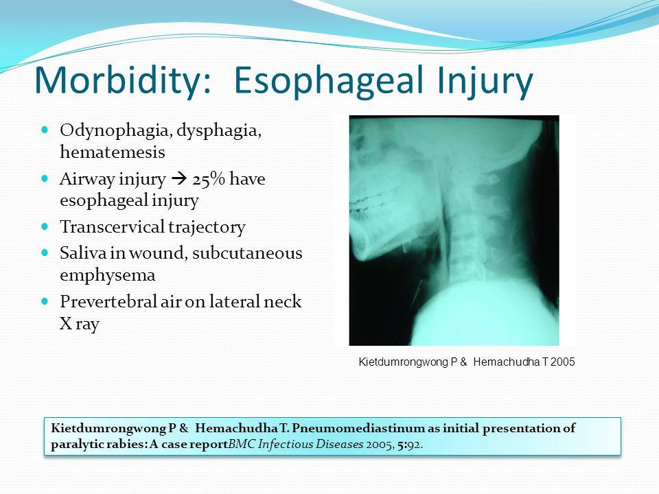 Morbidity: Esophageal Injury Odynophagia, dysphagia, hematemesis Airway injury  25% have esophageal injury Transcervical trajectory Saliva in wound,