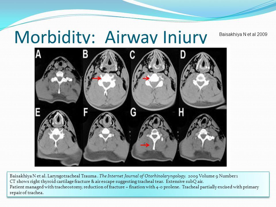 Morbidity: Airway Injury Baisakhiya N et al 2009 Baisakhiya N et al. Laryngotracheal Trauma. The Internet Journal of Otorhinolaryngology. 2009 Volume