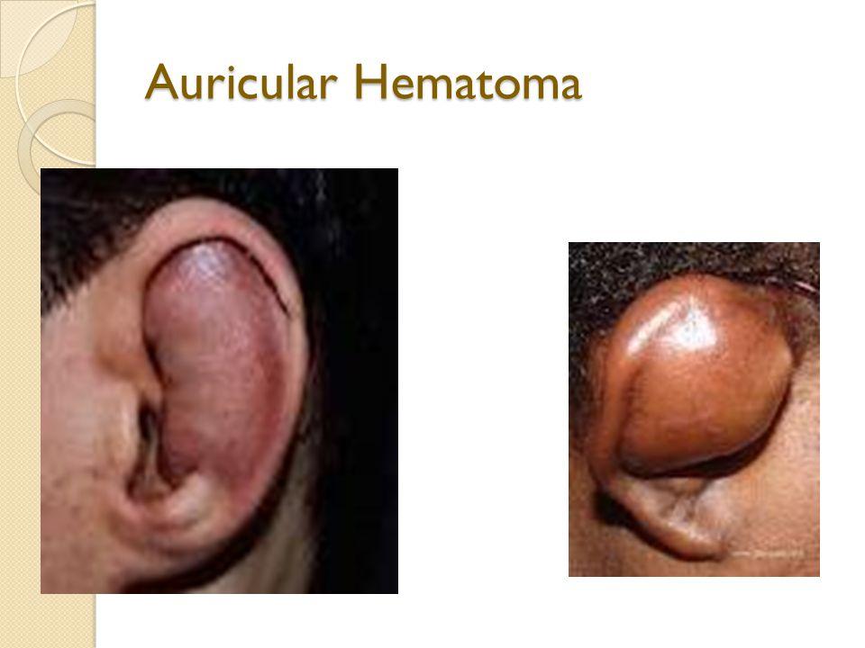 Auricular Hematoma