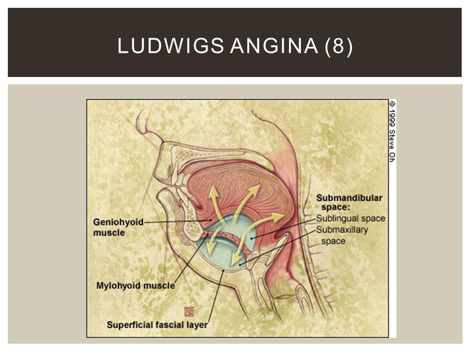 LUDWIGS ANGINA (8)
