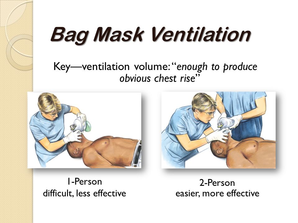 """Bag Mask Ventilation Key—ventilation volume: """"enough to produce obvious chest rise"""" 1-Person difficult, less effective 2-Person easier, more effective"""