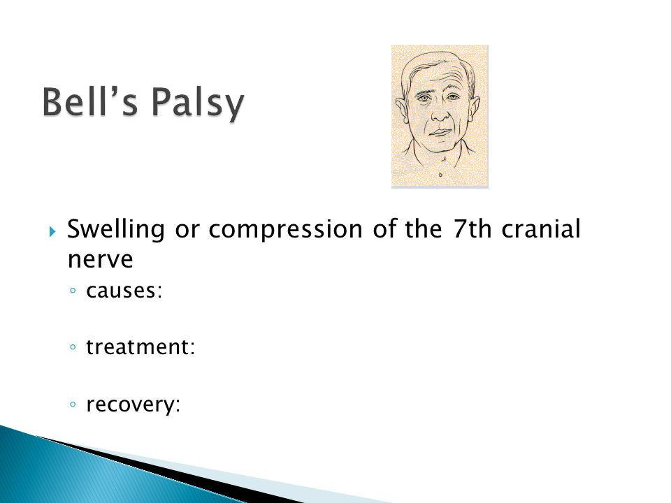  Swelling or compression of the 7th cranial nerve ◦ causes: ◦ treatment: ◦ recovery: