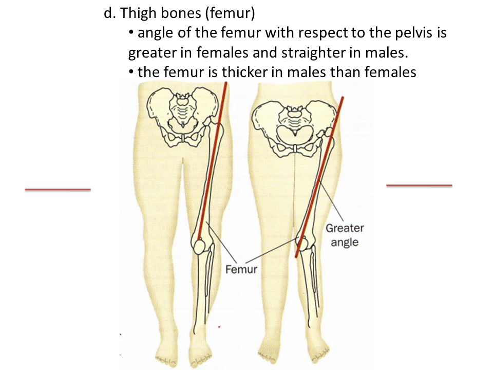 d. Thigh bones (femur) angle of the femur with respect to the pelvis is greater in females and straighter in males. the femur is thicker in males than