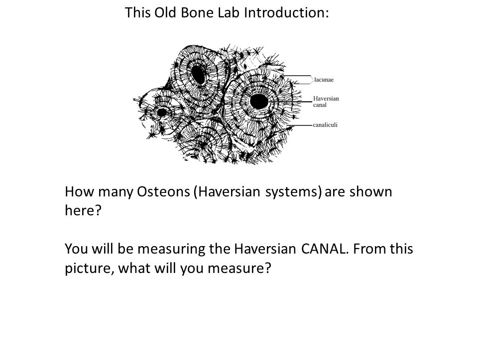 This Old Bone Lab Introduction: How many Osteons (Haversian systems) are shown here.