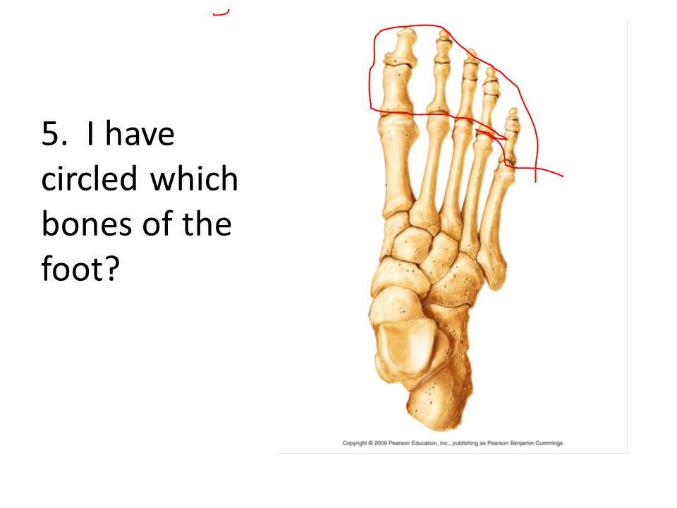 5. I have circled which bones of the foot