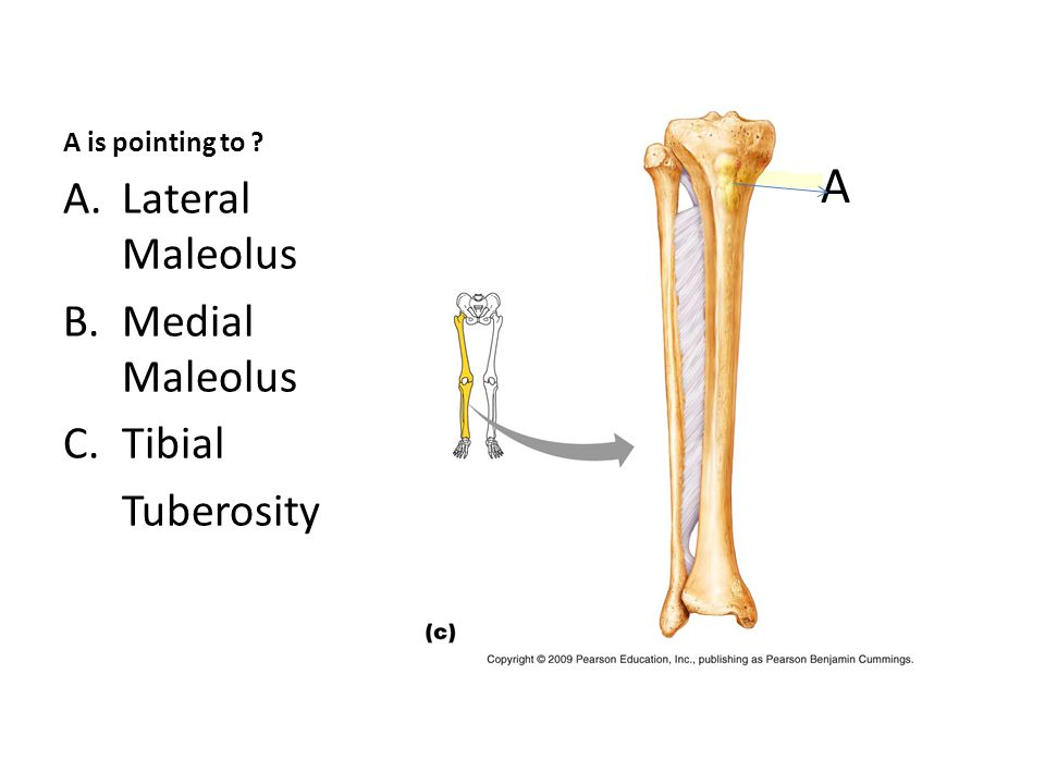 A is pointing to A.Lateral Maleolus B.Medial Maleolus C.Tibial Tuberosity A