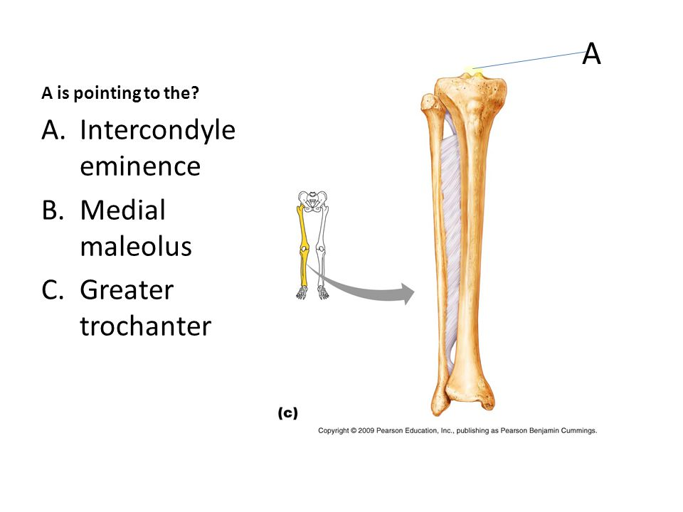 A is pointing to the A.Intercondyle eminence B.Medial maleolus C.Greater trochanter A