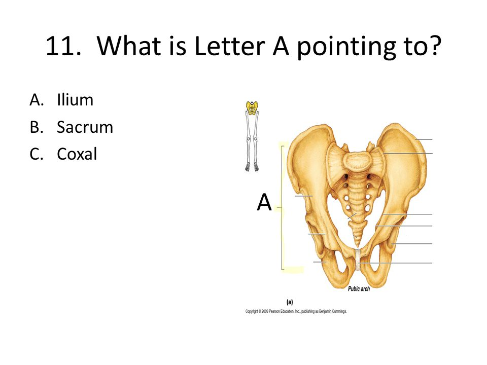 11. What is Letter A pointing to A.Ilium B.Sacrum C.Coxal A
